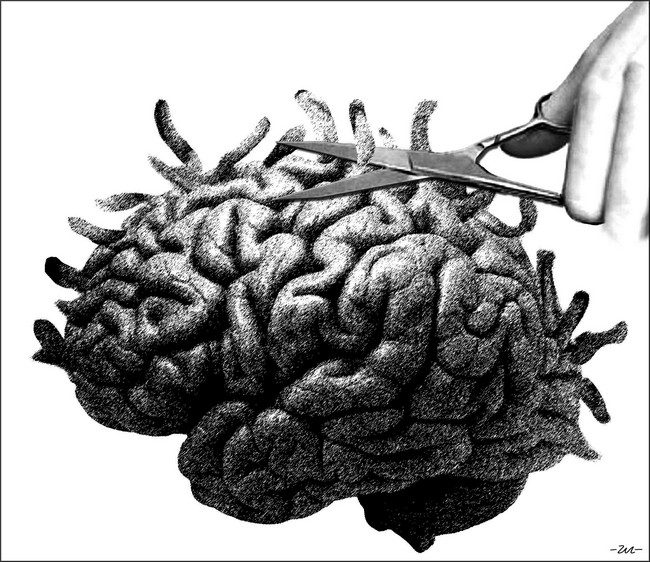Geza Halasz - Brain